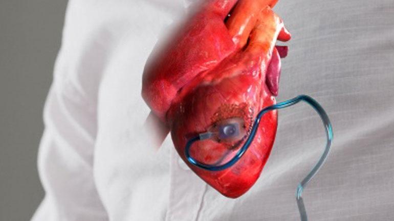 Δημιουργήθηκε η πρώτη συσκευή που εμφυτεύεται στην καρδιά και την προστατεύει έπειτα από έμφραγμα