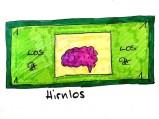 Hirnlos