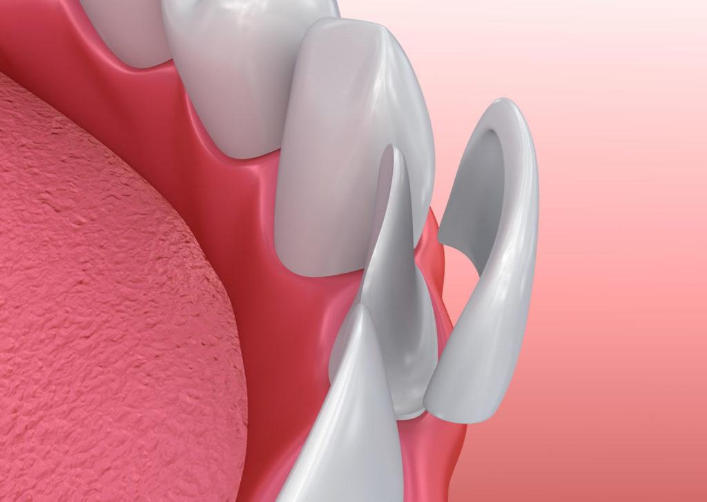 dental-zubident