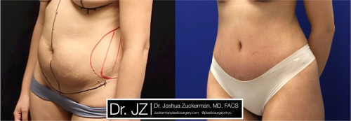 Left oblique view of one of Dr. Zuckerman's tummy tuck surgery outcomes. Images were taken before surgery and three months after.