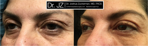 Left oblique view of an eyelid surgery outcome by Dr. Zuckerman. Patient underwent an upper blepharoplasty and fat grafting to the lower eyelids. Images were taken before surgery and one month after surgery.