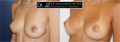 Left oblique view of a breast augmentation surgery outcome from Dr. Zuckerman before surgery and one year after surgery.