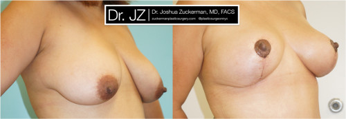 Right oblique view of a breast reduction surgery outcome from Dr. Zuckerman before surgery and three months after surgery.