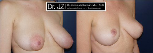 Right oblique view of a breast reduction surgery outcome from Dr. Zuckerman before surgery and one year after surgery.