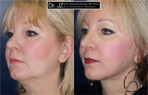 Left oblique view of one of Dr. Zuckerman's face lift surgery patients. Images were taken before surgery and one year after surgery.