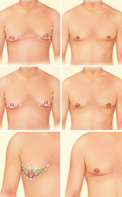 An illustration of the three possible ways that Dr. Zuckerman may perform male breast reduction surgery in increasing severity. Top: Liposuction only, Middle: Liposuction plus areolar incision, Bottom: modified Roberts pattern. Source: ASPS