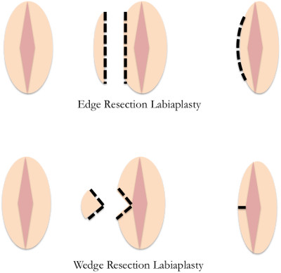A comparison of the edge resection labiaplasty technique versus the wedge resection labiaplasty.