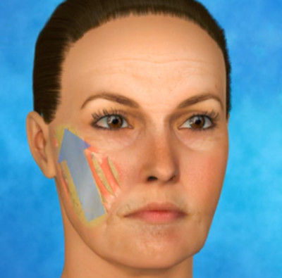 An illustration of the technique Dr. Zuckerman uses for MACS Face Lift Surgery.