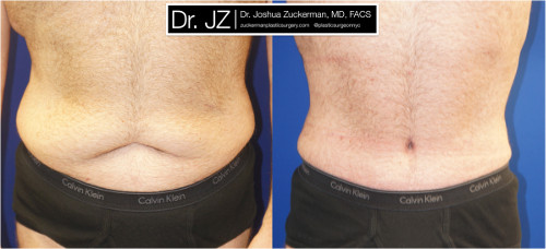 Frontal view of a post weight loss surgery patient. Dr. Zuckerman performed a tummy tuck after this patient had previously lost 100lbs. Images taken before surgery and three months post-op.