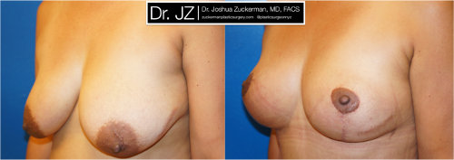 Left oblique view of a breast lift surgery (mastopexy) outcome from Dr. Zuckerman before surgery and one month after surgery.