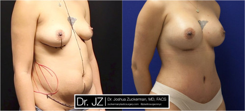 Right oblique view of one of Dr. Zuckerman's mommy makeover surgery outcomes where patient had undergone a breast augmentation and tummy tuck. Images were taken before surgery and three months after.
