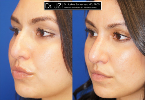 Left oblique view of rhinoplasty patient of Dr. Zuckerman. Images were taken before surgery and three months after surgery.
