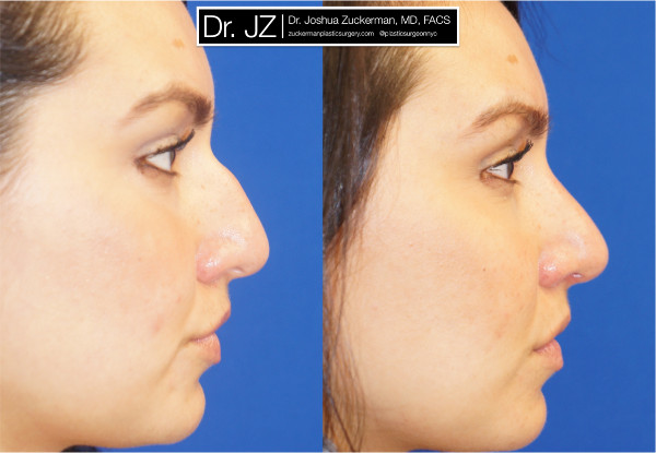 Right profile view of rhinoplasty patient of Dr. Zuckerman. Images taken before surgery and three months after surgery.