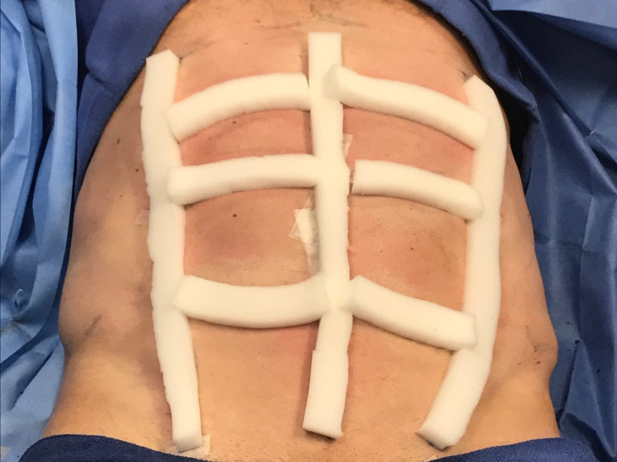 Plastic Surgery Trends: What is abdominal etching? – Top