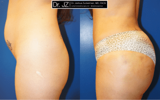 4 Tips for Finding Your Best Buttock Augmentation (Brazilian