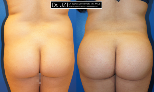 Posterior view of Buttock Augmentation patient, female, 2 months post-op. 2 Liters removed via liposuction from the abdomen and flanks. 560cc grafted to each buttock.