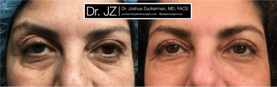 Frontal view of Blepharoplasty patient, female, 1 month post-op. Also performed fat grafting to the lower eyelids and tear troughs.