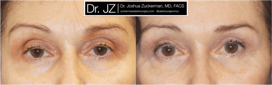 Frontal view of Blepharoplasty patient, female, 3 months post-op. Upper blepharoplasty with fat grafting to the lower eyelids and tear troughs.