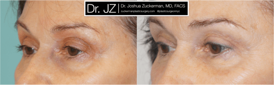 Left oblique view of Blepharoplasty patient, female, 3 months post-op. Upper blepharoplasty with fat grafting to the lower eyelids and tear troughs.