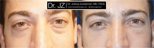 Frontal view of Blepharoplasty patient, male, 1.5 months post-op. Lower eyelid blepharoplasty with fat grafting to tear troughs. Result will continue to improve until final result around 3 months.