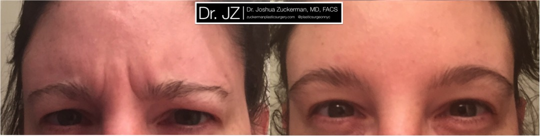 Frontal view of Botox treatment of the glabella (