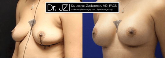 Left oblique view of Breast Augmentation patient, female, 2 months post-op. 300cc Mentor Smooth Round Moderate-Plus Profile breast implants. Submuscular placement. Inframammary fold incision.