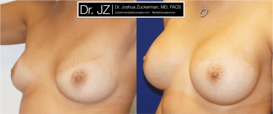 Left oblique view of Breast Augmentation patient, female, 1 year post-op. 325cc on the right, 350cc on the left to correct existing breast asymmetry. Mentor Smooth Round Moderate-Plus Profile breast implants.