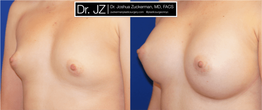 Left oblique view of Breast Augmentation patient, female, 2 months post-op. 275cc Mentor Smooth Round High Profile breast implants.