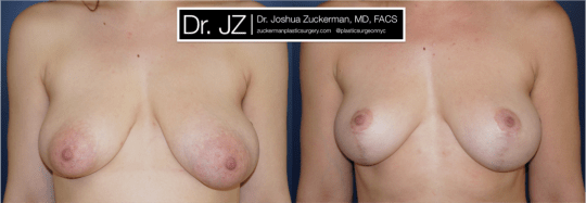 Frontal view of Breast Lift patient, female, 2 years post-op. Reduced left-side breast asymmetry.