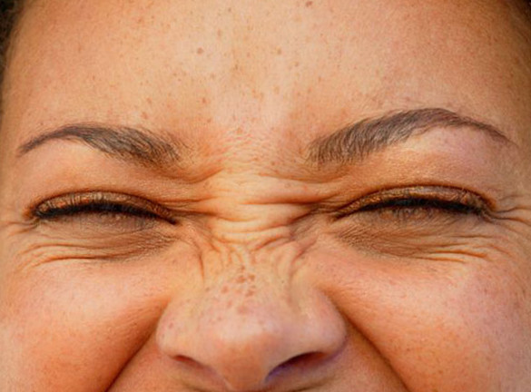 Example of the facial expression that causes bunny lines in some people. Bunny lines can be treated by Dr. Zuckerman with Botox Cosmetic in his office in New York City.