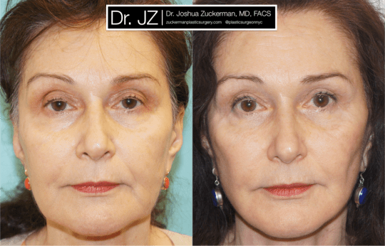 Frontal view of Face lift patient, female, 2 months post-op. Upper blepharoplasty (eyelid surgery), fat grafting to lower lids and tear troughs. TCA Peel perioral (around the mouth) for fine lines.