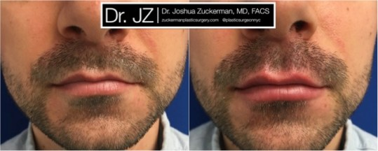 Frontal view of Lip Augmentation patient, male, day of. Injected 0.6cc of Juvederm Ultra Plus. Corrected lip asymmetry of righthand point of Cupid's bow.