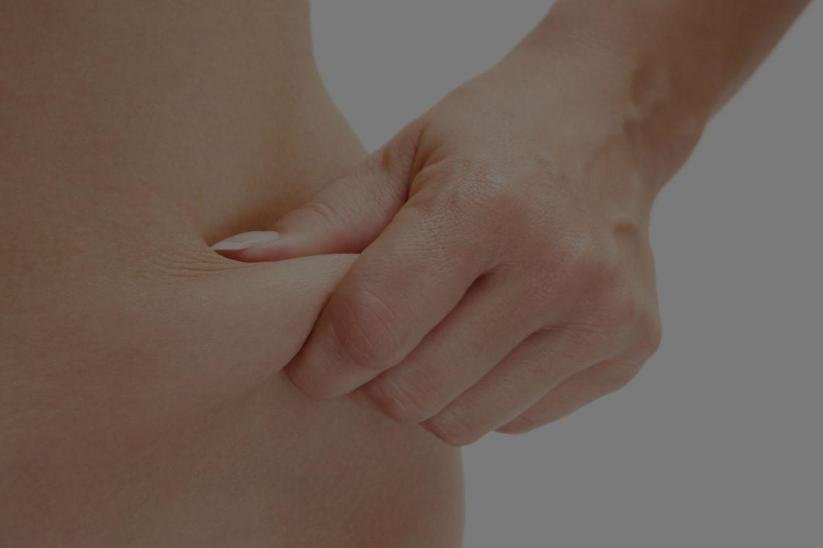 liposuction_stock_image.jpg?fit=1200%2C800&ssl=1