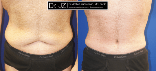 Frontal view of Abdominoplasty (Tummy Tuck) / Post-weight loss patient, male, 2 months post-op. Patient had lost 100 lbs prior to surgery.