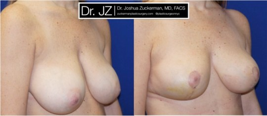 Right oblique view of Breast reduction patient, female, 3 weeks post-op. Vertical breast reduction. Post-operative bruising will subside and incisions heal to thin line.