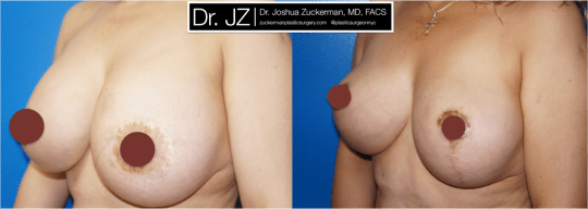 Left oblique view of Breast Lift and breast implant removal patient, female, 1 month post-op, vertical breast lift.