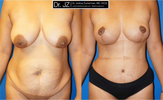 Frontal view of Mommy makeover' patient, female, 1 months post-op. Breast Lift (Mastopexy), vertical. Tummy Tuck (Abdominoplasty) with liposuction of abdomen and flanks.