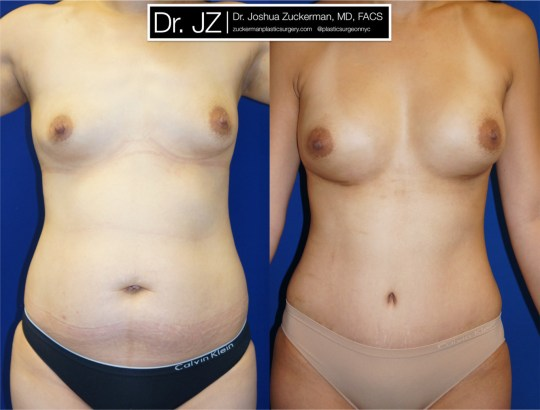 Frontal view of Mommy Makeover' patient, female, 2 months post-op. Breast augmentation with 400cc Mentor Round silicone implants. Liposuction of the abdomen and flanks. Tummy tuck performed as well.