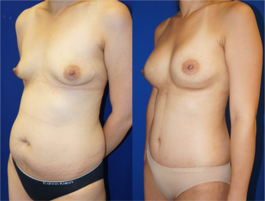 Left oblique view of Mommy Makeover' patient, female, 2 months post-op. Breast augmentation with 400cc Mentor Round silicone implants. Liposuction of the abdomen and flanks. Tummy tuck performed as well.