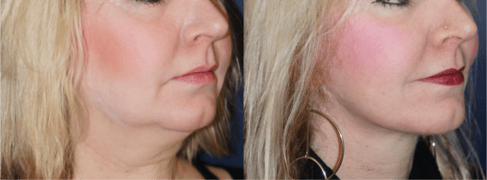 Right oblique view of Neck lift patient, female, 1 year post-op. Patient underwent liposuction of the neck and a full face lift (not pictured).
