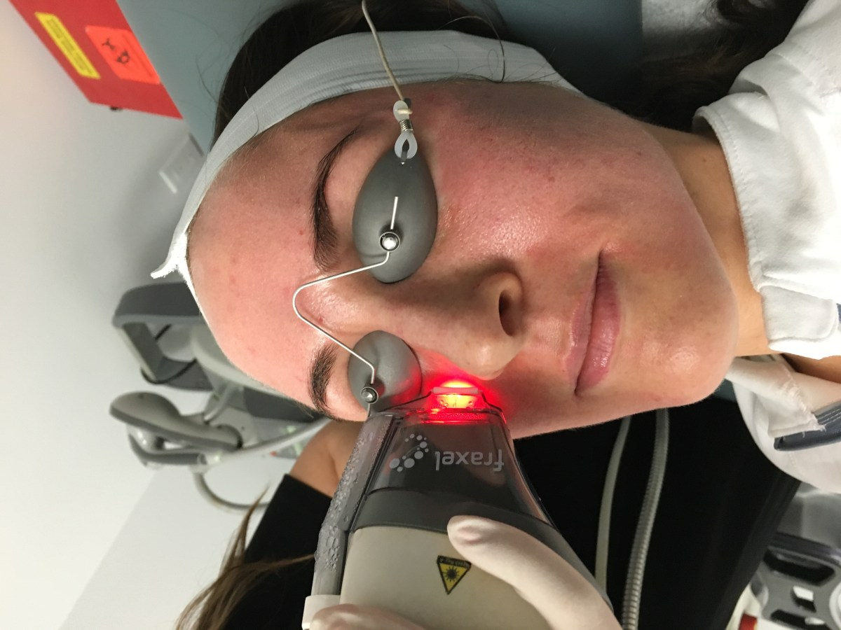 A patient undergoing a Fraxel® laser resurfacing treatment in Dr. Zuckerman's office in New York City, another common laser resurfacing treatment.
