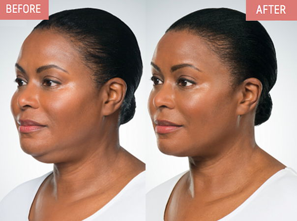 Dr. Zuckerman discusses Kybella treatment as a trend to eliminate submental, under-chin, fat to maintain a