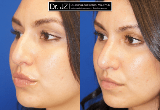 Left oblique view of Rhinoplasty patient, female, 2 months post-op. Dorsal hump reduction.