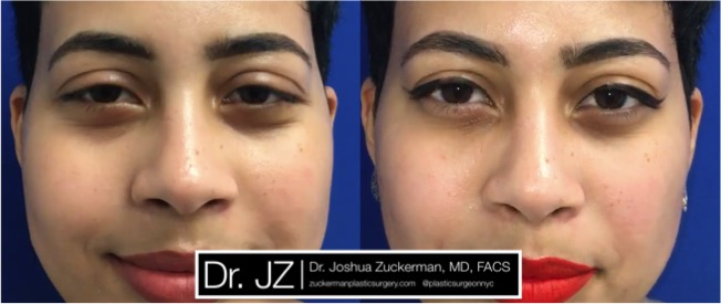 Frontal view of tear trough rejuvenation to fill in dark circles / restore a tired appearance. 1cc of Radiesse injected per eye. Images taken day of treatment.