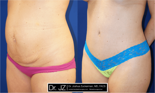 Left oblique view of Abdominoplasty patient, female, 1 month post-op. 1 Liter of fat removed via liposuction of the abdomen and flanks as well.
