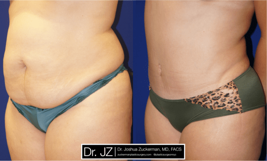 Left oblique view of Abdominoplasty patient, female, 4 months post-op. Liposuction of the abdomen and flanks performed as well.