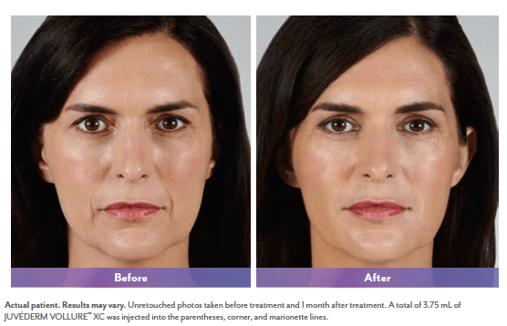 Vollure treatment for nasolabial folds. Source: official before&after photo from manufacturer Allergan.