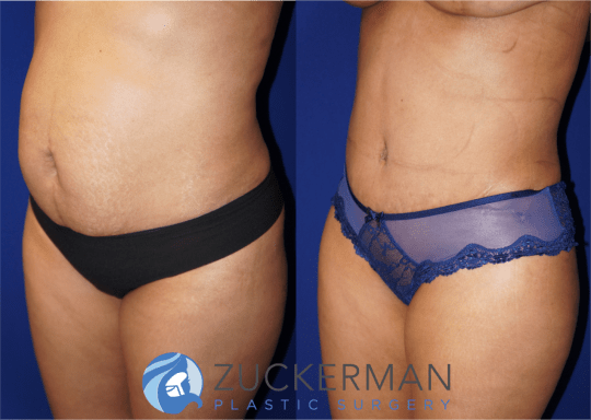 Left oblique view of an abdominoplasty (tummy tuck) by Dr. Zuckerman, images taken before surgery and two months after. Includes liposuction to the abdomen and flanks.