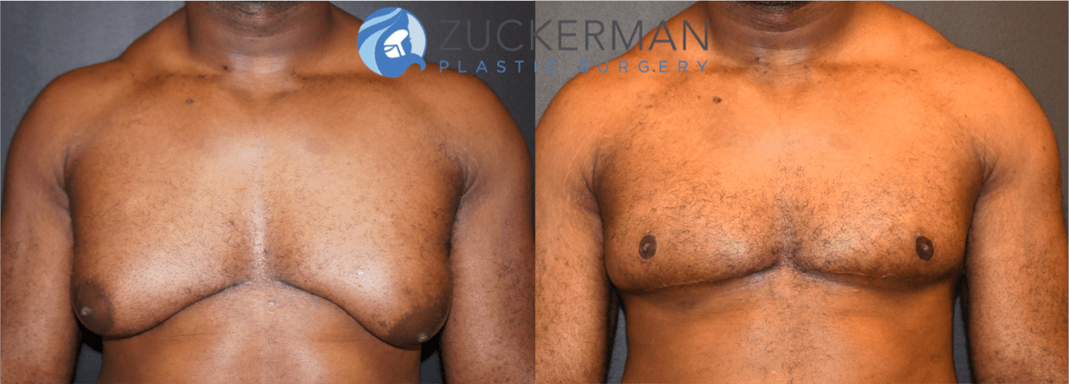 gynecomastia, male breast reduction, before and after, frontal view