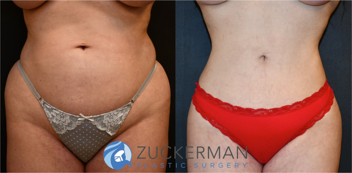 Liposuction (liposculpture) Nyc  Top Ranked Zuckerman. Sophie Davis School Of Biomedical Education. Bright House Networks Home Security. American Self Storage Newark Nj. Stump Grinding Seattle U S Security Solutions. Breast Reduction Results Intuit Cloud Hosting. Healthcare Management Degrees Online. List Of Chicago Colleges Adoption Agency Utah. Carpet Cleaning League City Bmcc Help Desk